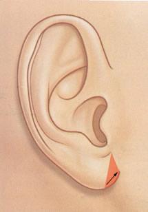 earlobe_reduction